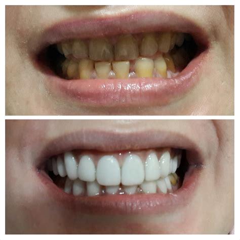 Veneer Pemutih Gigi dokter gigi yang bagus di jakarta barat audy dental
