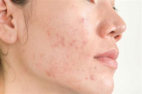 How To Get Rid Of Acne Scars by How To Get Rid Of Acne Scars Naturally Beautyvigour