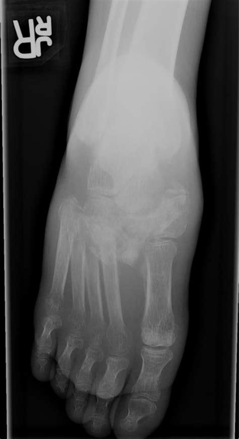charcot foot charcot arthropathy caused  lisfranc