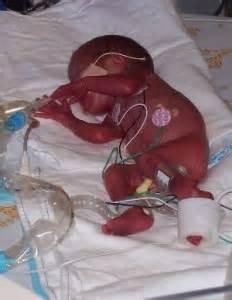 Then amp now photos premature babies born at 26 weeks l il aussie