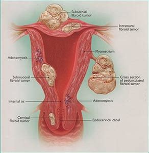 100 shedding uterine lining while why the