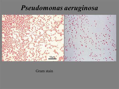 30 best pseudomonas sp images on pinterest pseudomonas aeruginosa