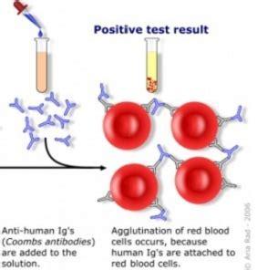 test di coombs diretto screening preconcezionale ed in gravidanza analisi