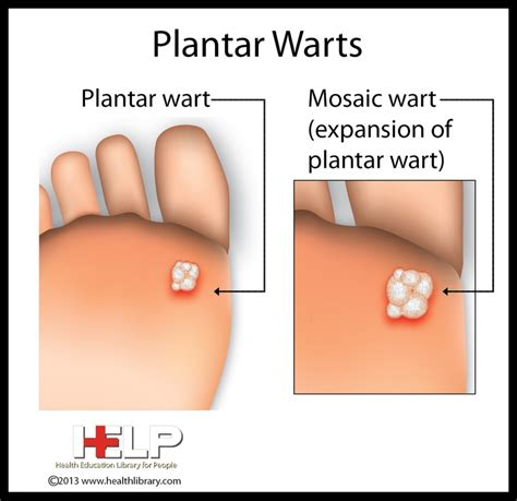 31 Best Images About Best Wart Remover On Pinterest How To Treat A Planters Wart