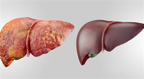 Does Running Detox Liver by These 6 Foods Detox Your Liver Fast
