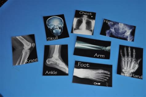 printable x ray pictures x ray printables so kids can play match to their body