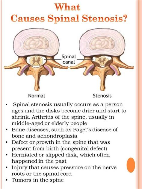 spinal stenosis diagram 73 best images about back health on back