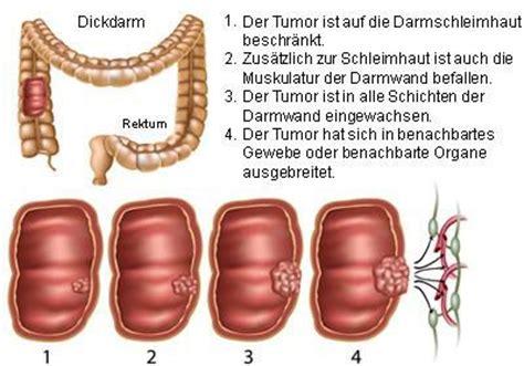 darmkrebs dickdarmkrebs mastdarmkrebs netdoktor at