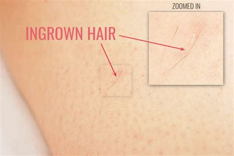 how to remove engrown hair onunderwear line how to prevent ingrown hairs with these 7 effective tips