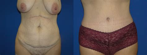 c section and tummy tuck together tummy tuck before after dr farbod esmailian