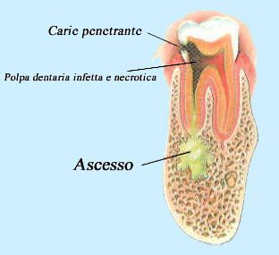 carie interna sintomi ascesso dentale endless summer