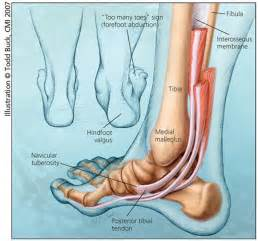 Posterior tibial tendon insufficiency adult acquired flatfoot an