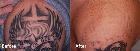 how does skin look after tattoo removal picoway at contour all colors no problem contour