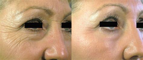ablative laser resurfacing skin resurfacing laser lumenis before after photos the oaks at goodwood medical spa