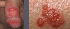 How Does Herpes Shedding Last by 601 Clinical Medicine Derm 2 Viral Bacterial