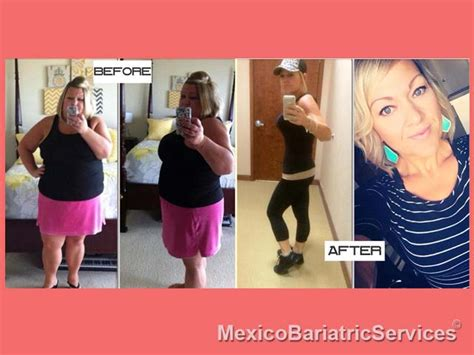 gastric bypass testimonials success stories with before weight loss surgery success stories mexico bariatric