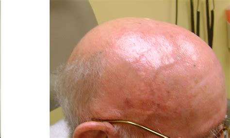 Management Of Acute Radiotherapy Induced Skin Reactions A Literature Review by Radiation Dermatitis Radiodermatitis Radiation Epidermitis Radiation Skin Toxicity Acute