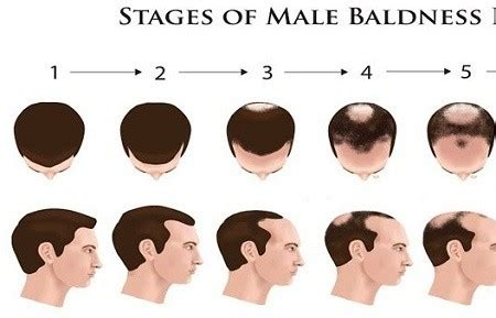 male pattern hair loss emedicine hairfall at crown area only and my scalp is visible any