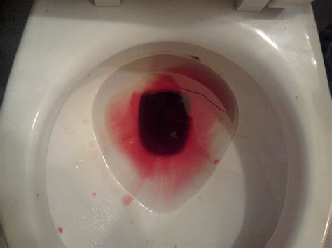 What Does Bright Blood In Stool by Must Read 10 Symptoms That Could You Cancer