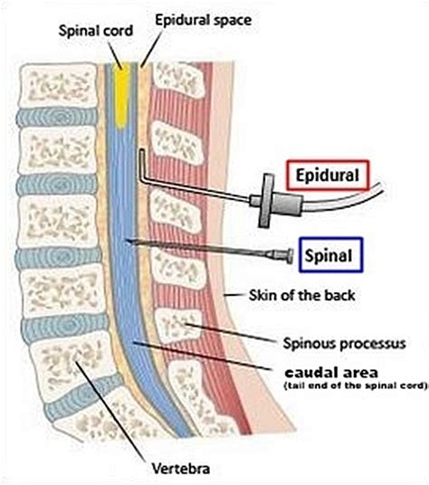 how long does a spinal block last for c section spinal anesthesia related keywords spinal anesthesia