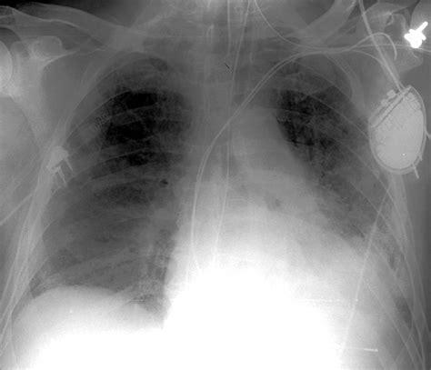 film x ray quiz icu chest films