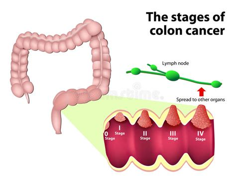 Can A Stool Sle Detect Colon Cancer by The Stages Of Colorectal Cancer Stock Vector Image 47786143