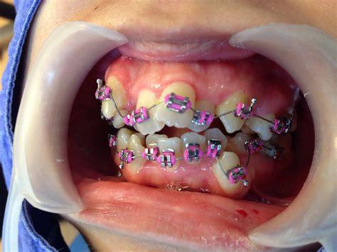 braces colors for teeth braces colors surgery pics
