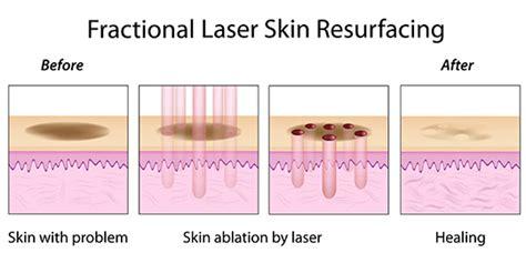 ablative laser resurfacing skin resurfacing laser lumenis fractional laser resurfacing toronto cosmetic clinic
