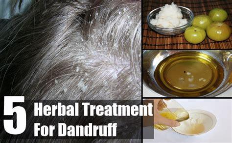 herbal treatment  dandruff search home remedy