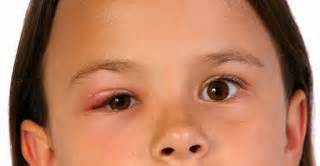 Obat Mata Bintitan Uh cara menyembuhkan penyakit asam urat