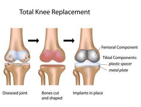 knee surgery total knee replacement procedure using robotics outpatient total knee replacement