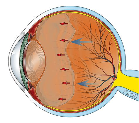 corpi mobili vitreali cura distacco posteriore di vitreo conseguenze