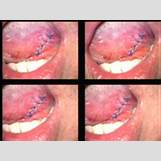 Leukoplakia Roof Of Mouth | 200 x 150 jpeg 23kB