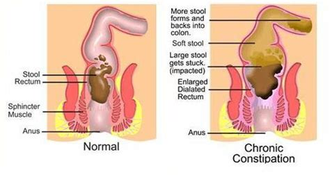 Abdominal Before Passing Stool by Constipation Homeopathic Treatment For Constipation