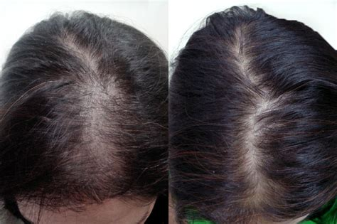Nioxin Female Pattern Hair Loss | guide non permanent shed foundation
