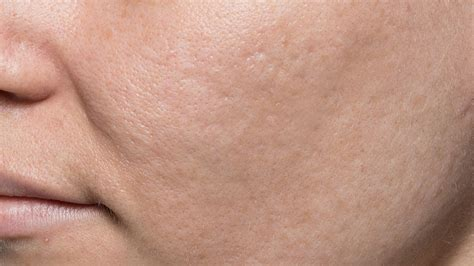 bellafill for results of acne scars bellafill acne scars after dermatologist in charleston sc