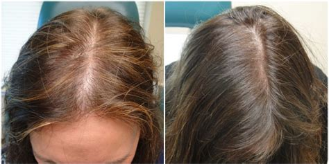 before snd after picture of hair growth in eonen do platelet rich plasma hair growth treatments work the