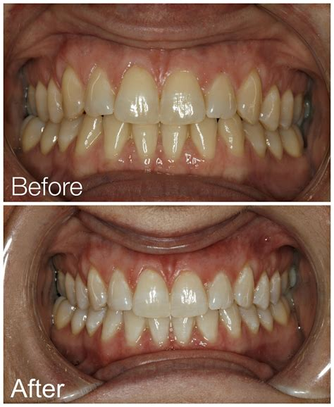 teeth whitening austin tx  sagedentistryaustincom