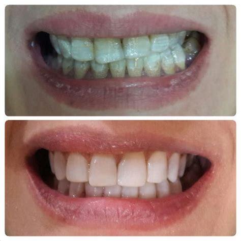Pemutihan Gigi Di Klinik Swasta pemutihan gigi di jakarta audy dental