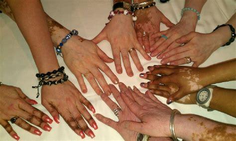 Obat Tradisional Kulit Vitiligo obat tradisional untuk mengatasi pigmen kulit yang rusak