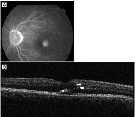 pattern dystrophy fluorescein angiography common spectral domain oct and electrophysiological