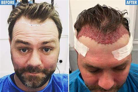 coronation street hair transplants westlife singer brian mcfadden reveals gory results of