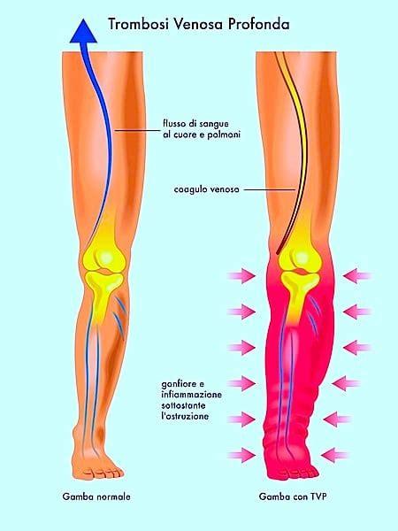 dolore lato interno ginocchio dolori alle gambe al mattino o la sera cause rimedi naturali