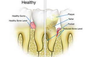 how to remove tartar from teeth at home remove tartar buildup fast with these 4 ingredients