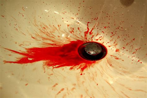 Blood Real In by Real Blood Just Nose Bleed It Was Taking This Pic