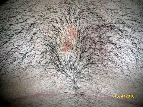 granos en el cuero cabelludo dermatologia dermatologo net 187 dermatitis seborreica en el pecho