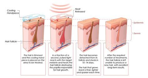 forever free hair removal forever free hair removal vertical 808nm xenon l diode
