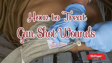 how to treat wounds how to treat a gunshot wound msprepper