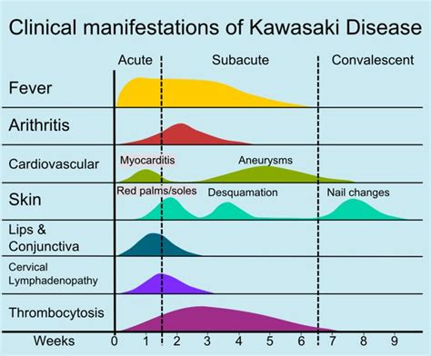 Kawasaki Disorder by 111 Best Kawasaki Disease Images On Kawasaki