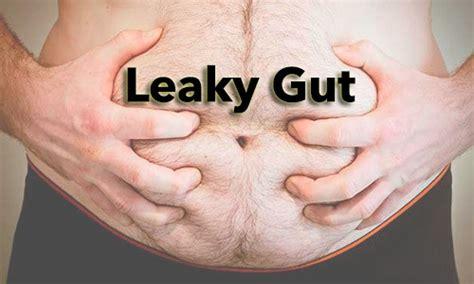 alimentazione virus intestinale intestino flora intestinale nod2 e tlr 2 alimentazione